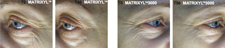 matrixyl 3000