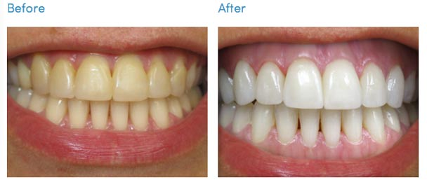 How To Whiten Teeth At Home Without Baking Soda Designing An