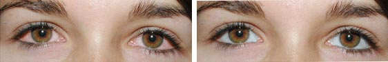 eye before after