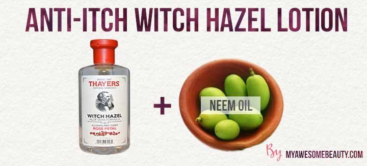 anti itch witch hazel lotion
