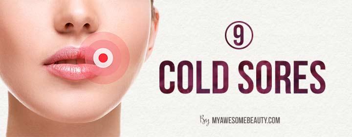 cold sores
