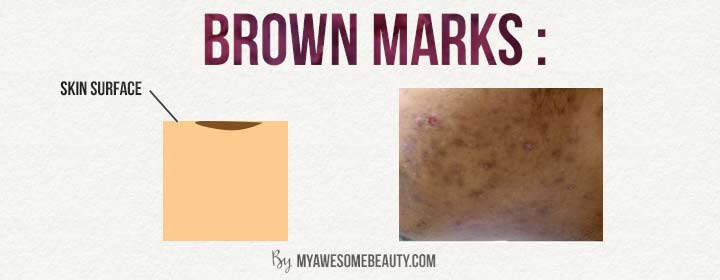 brown marks