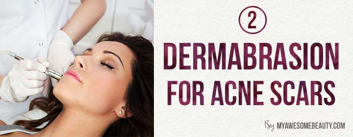 dermabrasion for acne scars