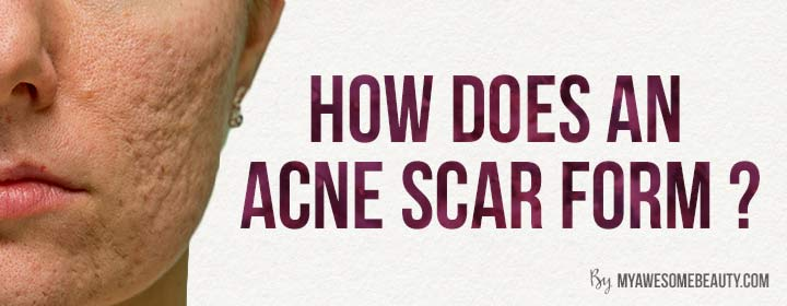 how does an acne scar form?