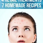 How to get rid of acne scars fast ?