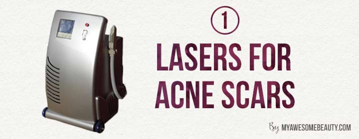 resurfacing lasers for acne scars