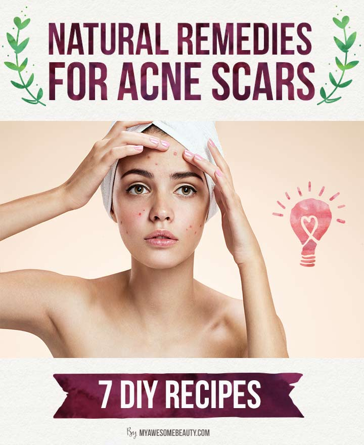 How to get rid of acne scars fast the 20 best treatments - Natural home ...