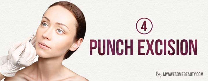 punch excision