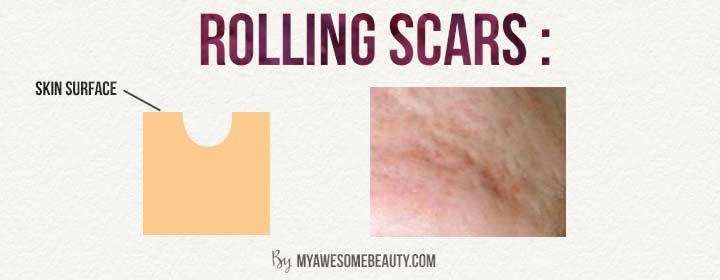 rolling scars
