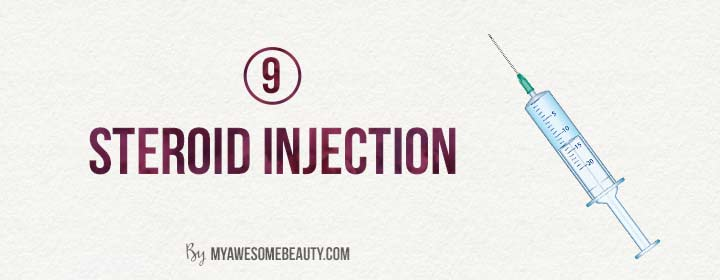 steroid injections