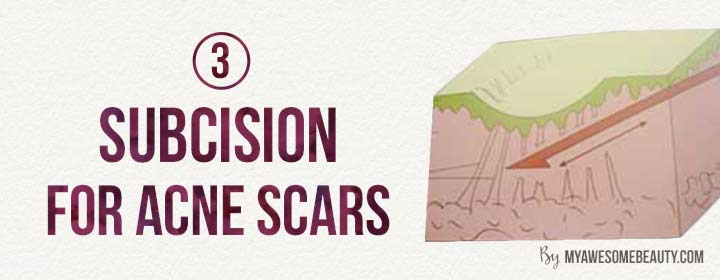 subcision for acne scarring