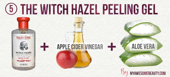 the witch hazel peeling gel