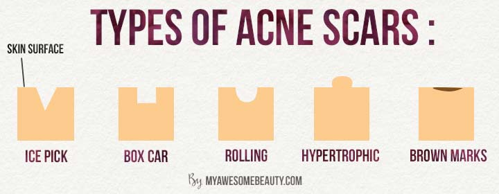 types of acne scars