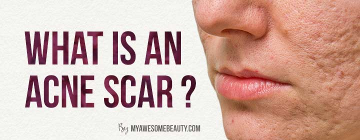 what is an acne scar ?