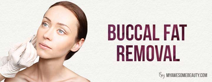 Bucal Fat Removal 72