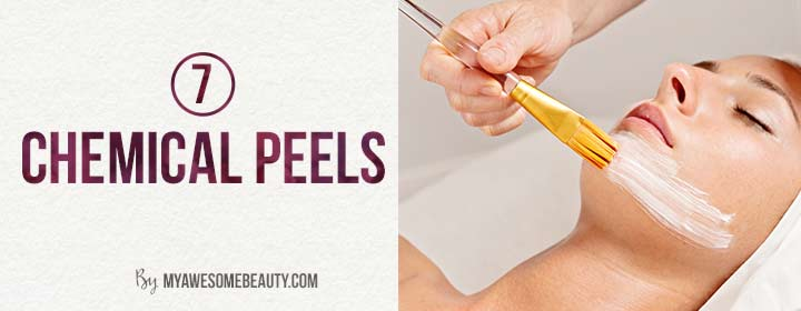 chemical peels for forehead lines