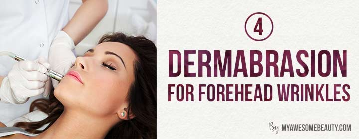 Dermabrasion for forehead wrinkles