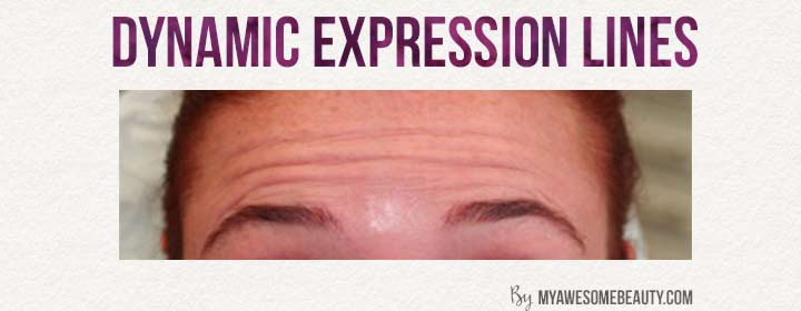 Dynamic expression wrinkles