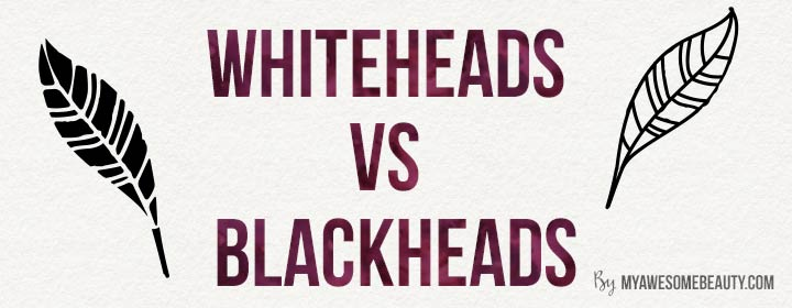 difference between whiteheads and blackheads