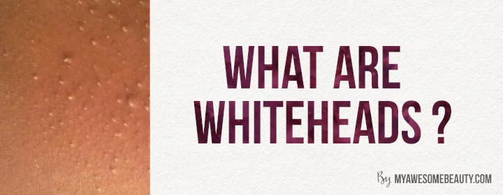 what are whiteheads ?