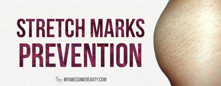 stretch marks prevention