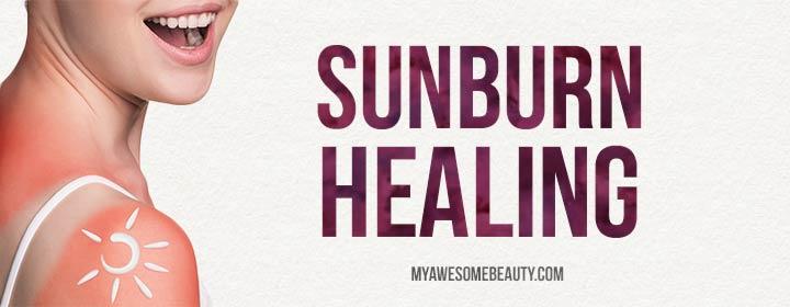 sunburn healing