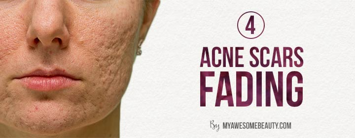 reason 4 acne scars fading