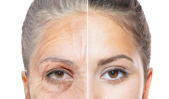 Can we really control our skin aging ? 5 tips to slow it down
