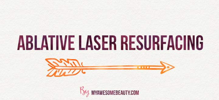 ablative laser resurfacing for scars