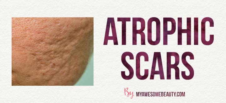 example of atrophic scars