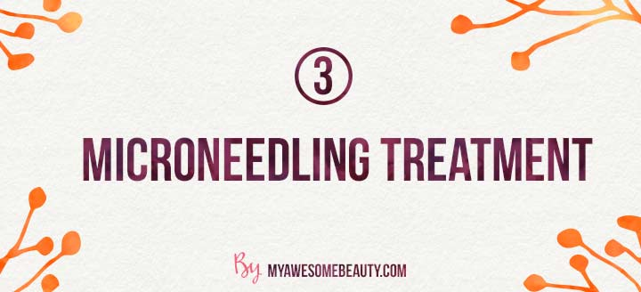 microneedling treatment