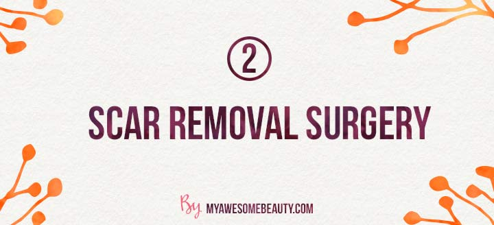 scar removal surgery