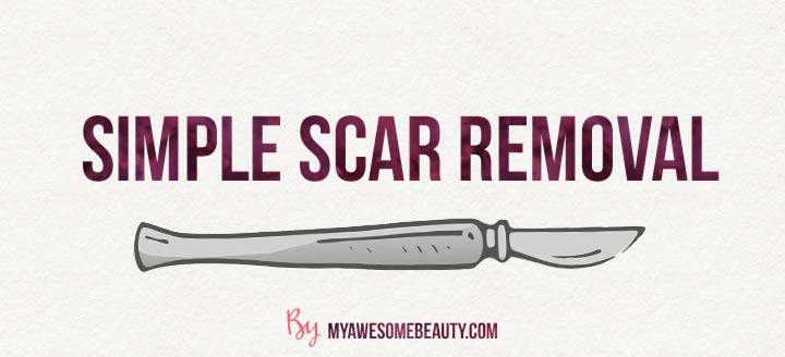 simple scar removal surgery