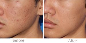 before after microneedling results for scars
