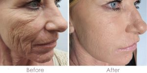 before after microneedling results for wrinkles