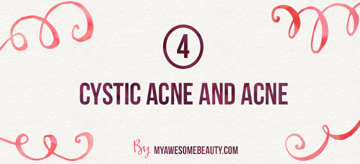 cystic acne and acne
