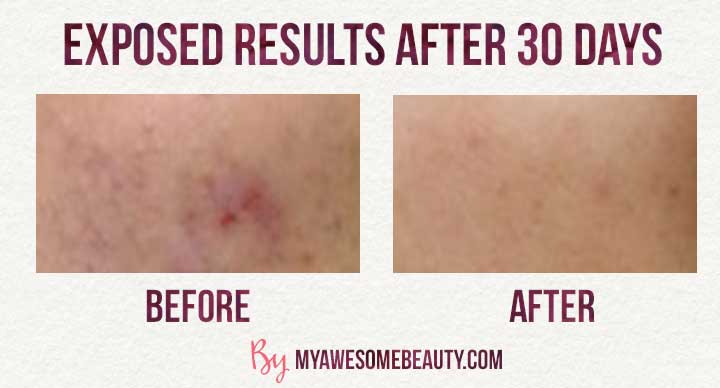 Exposed Skin Care Reviews My 30 Day Test And Ingredient Analysis