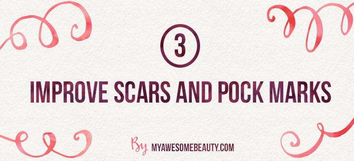 improve scars and pock marks