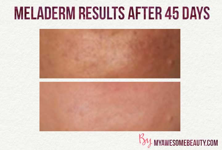 meladerm before and after pictures 2